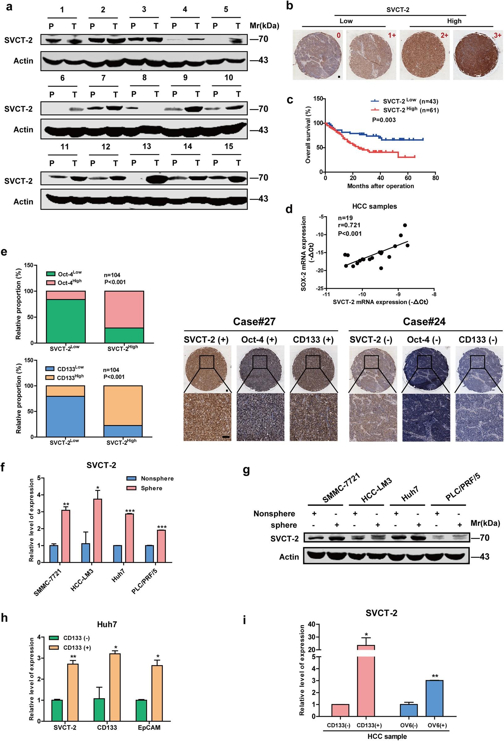 Vitamin C preferentially kills cancer stem cells in hepatocellular ...