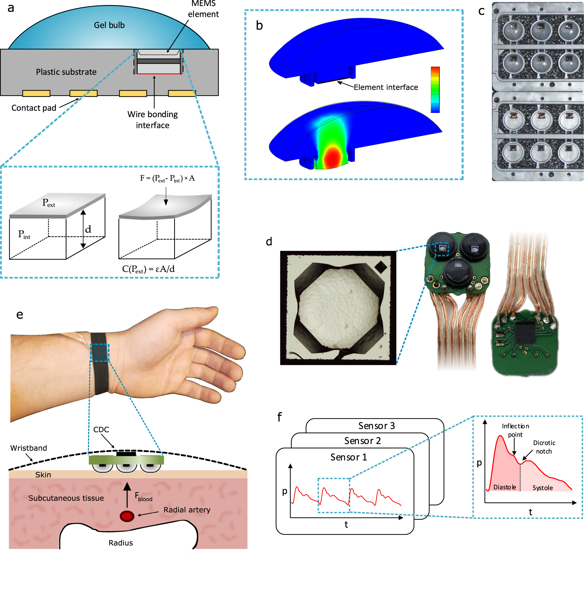 Clinical assessment of a non-invasive wearable MEMS pressure