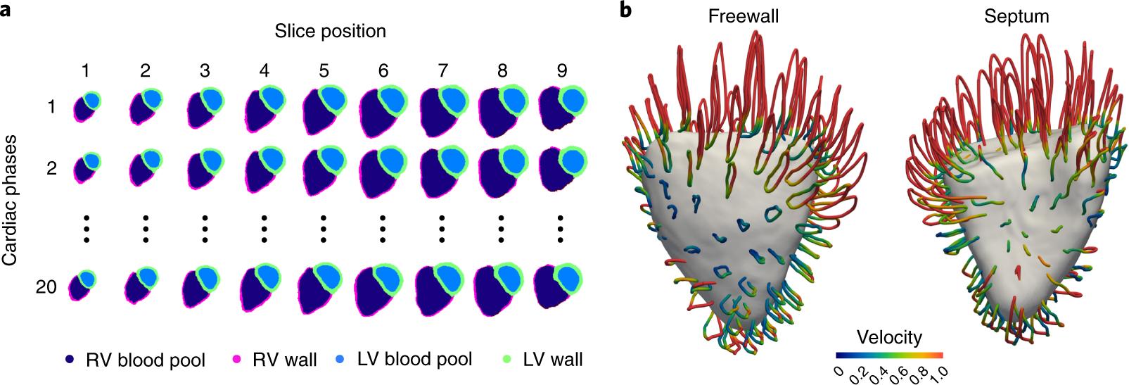 Deep-learning cardiac motion analysis for human survival prediction