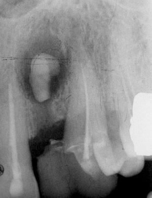 Fresh Extraction Sites British Dental Journal