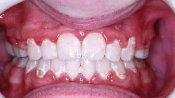 Orthodontics  Part 6: Risks in orthodontic treatment