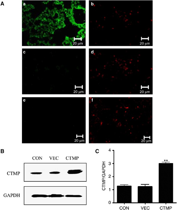 low price sale on feet shots of best wholesaler Lentivirus-mediated carboxyl-terminal modulator protein gene ...