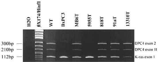 Mutations of the DPC4/Smad4 gene in neuroendocrine pancreatic tumors