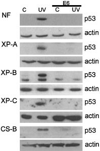 P53 plays a protective role against UV- and cisplatin-induced
