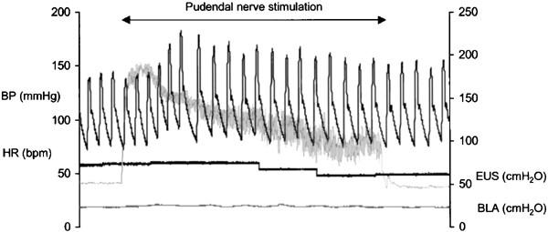 Autonomic dysreflexia in response to pudendal nerve stimulation