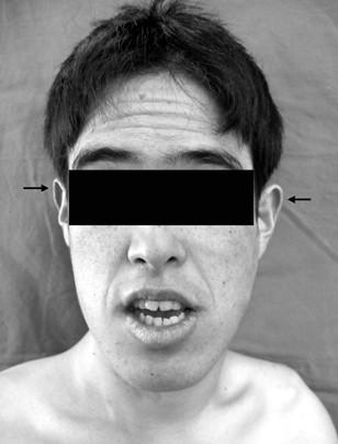 Tetraparesis due to exostotic osteochondroma at upper