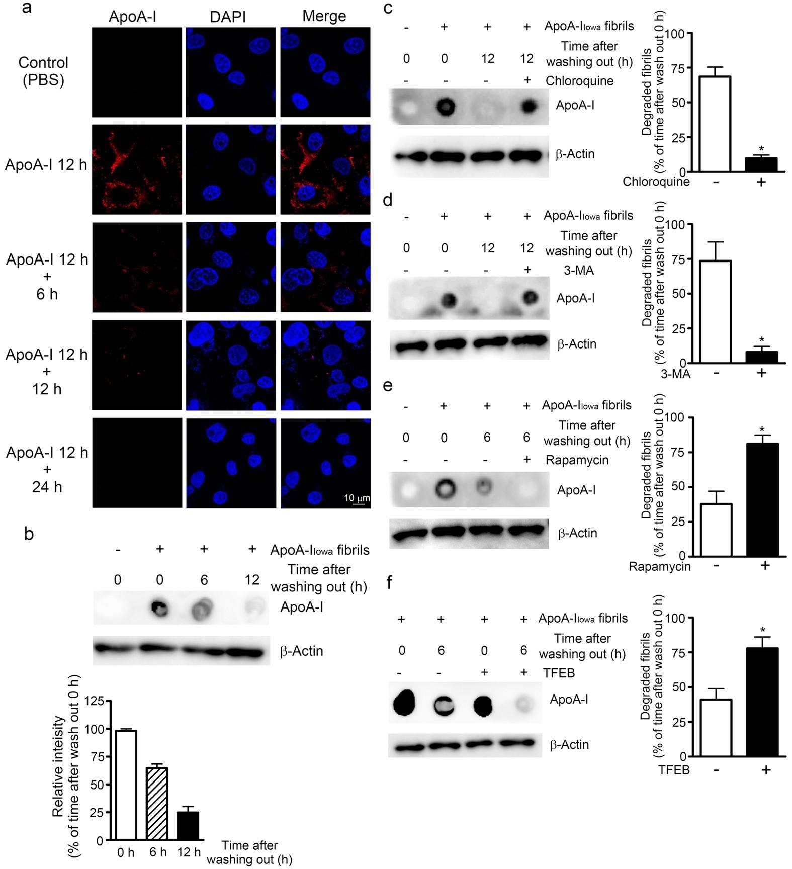 Iowa Mutant Apolipoprotein A I Apoa I Iowa Fibrils Target