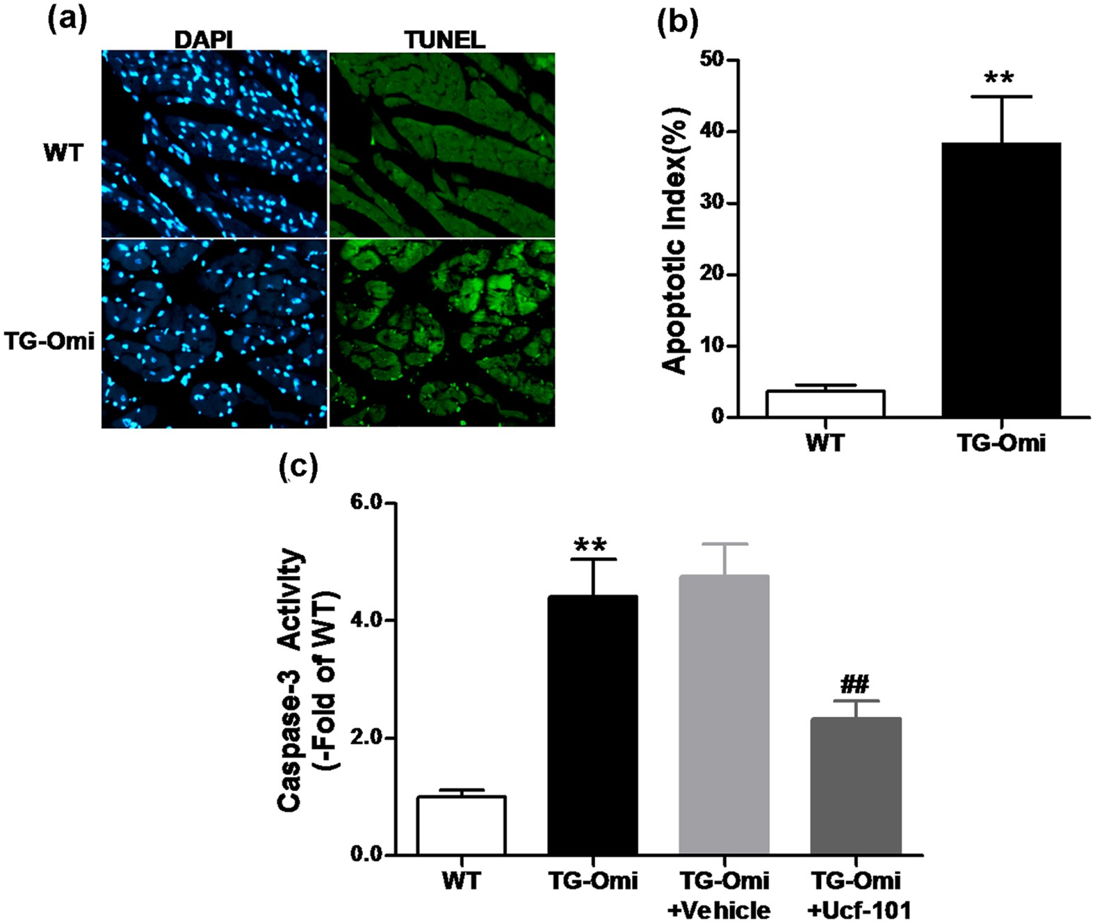 Cardiac Specific Overexpression of Mitochondrial Omi/HtrA2