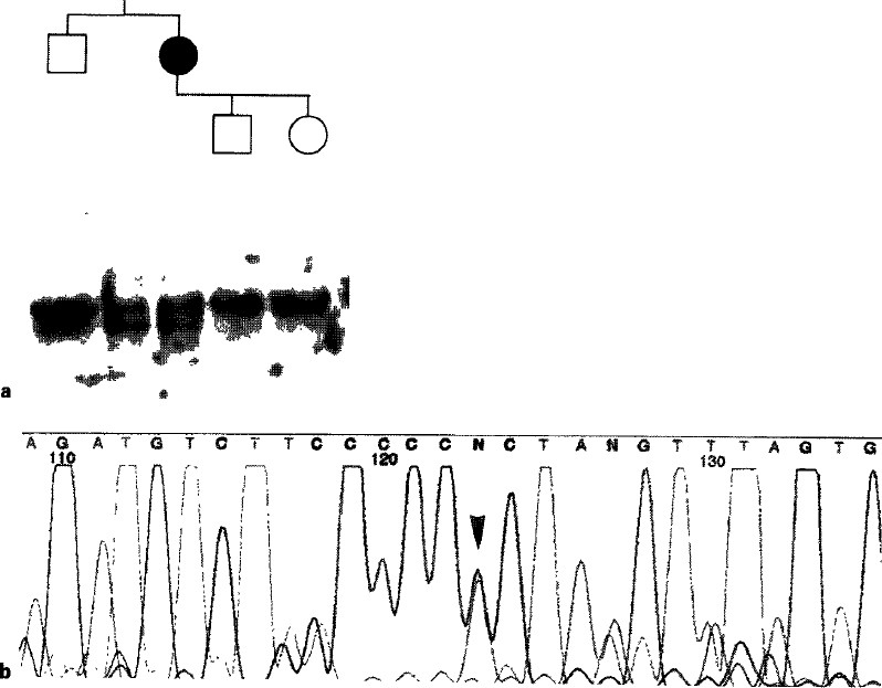 Mutations in the Muscle Sodium Channel Gene (SCN4A) in 13 French