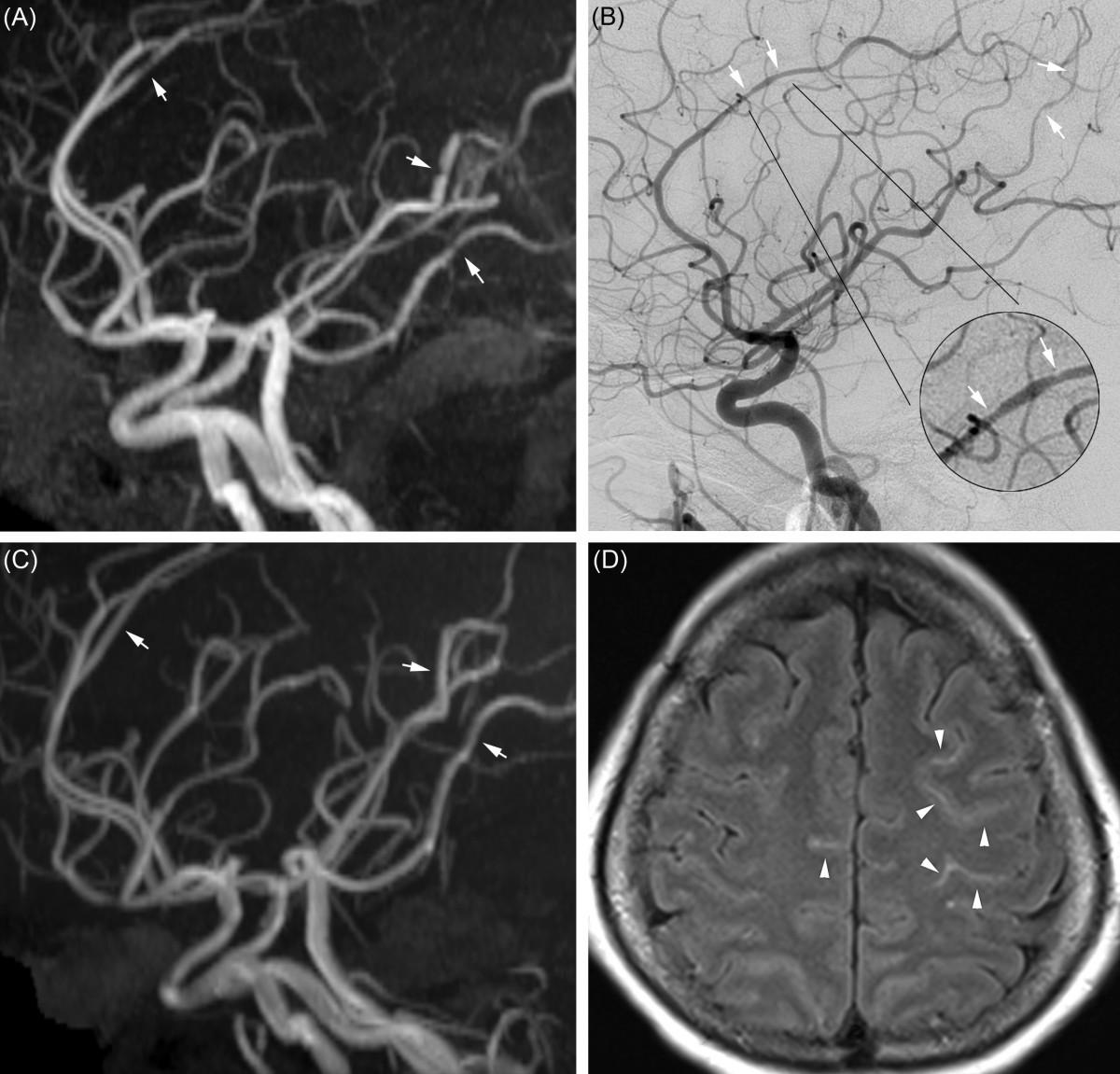 reversible cerebral vasoconstriction syndrome pdf