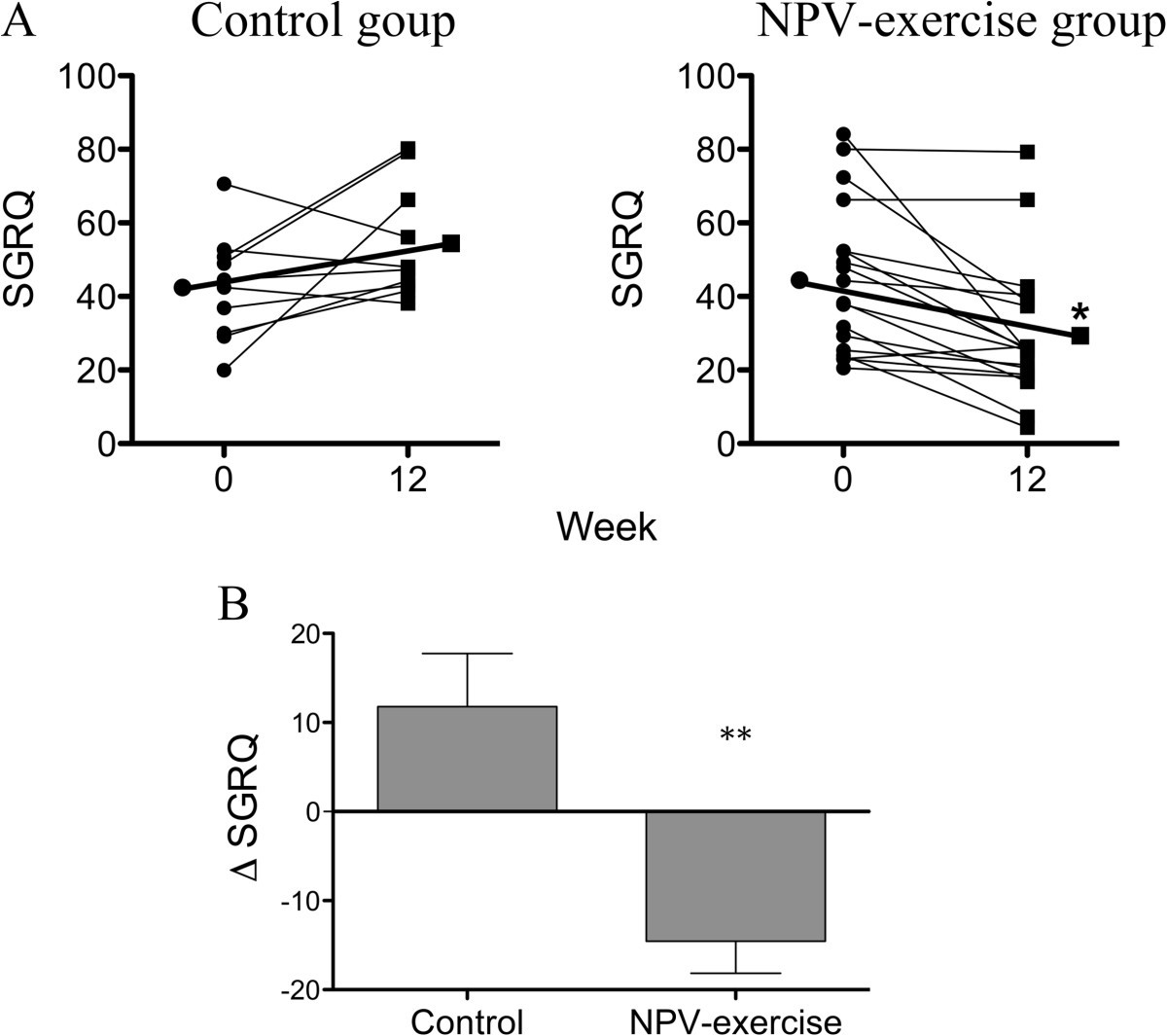 Treadmill Stress Test Negative: Exercise Training With Negative Pressure Ventilation