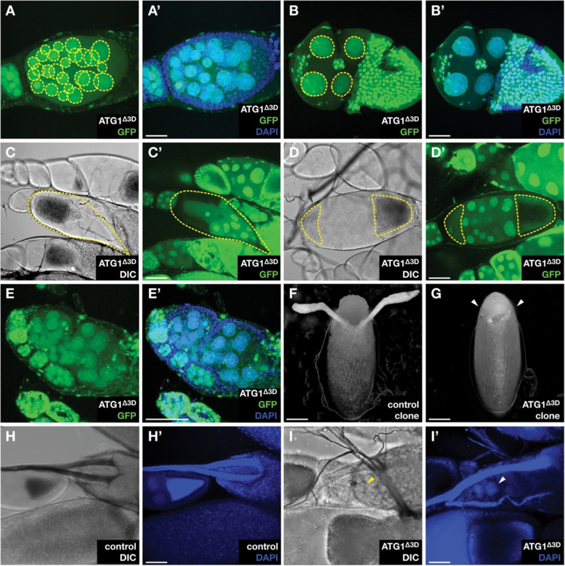 The lack of autophagy triggers precocious activation of Notch ...