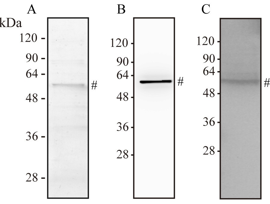 Identification Of Leptospiral 3 Hydroxyacyl Coa Dehydrogenase