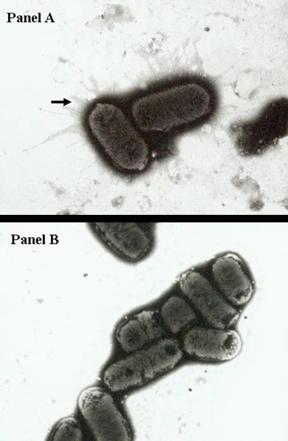 monophasic salmonella typhimurium Emergence of monophasic salmonella typhimurium in the us: looking through the minnesota vdl keyhole - dr julio alvarez, from the 2016 allen d leman swine.