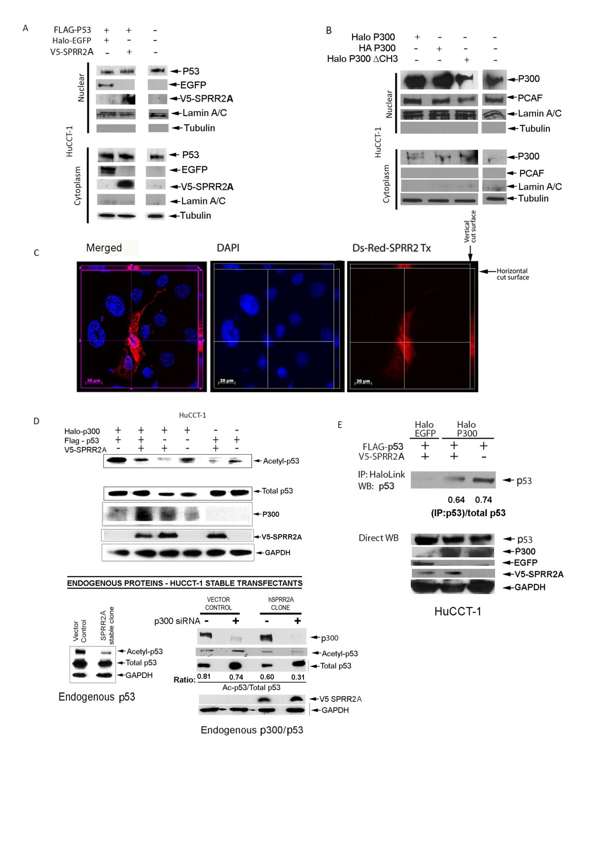 Sprr2a Enhances P53 Deacetylation Through Hdac1 And Down Regulates