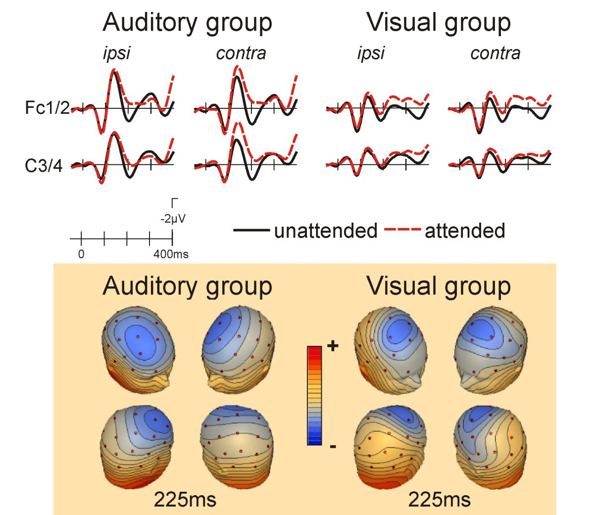 Crossmodal Attention Effects On Brain Responses To Different Bio Ball Isi 50 Figure 4