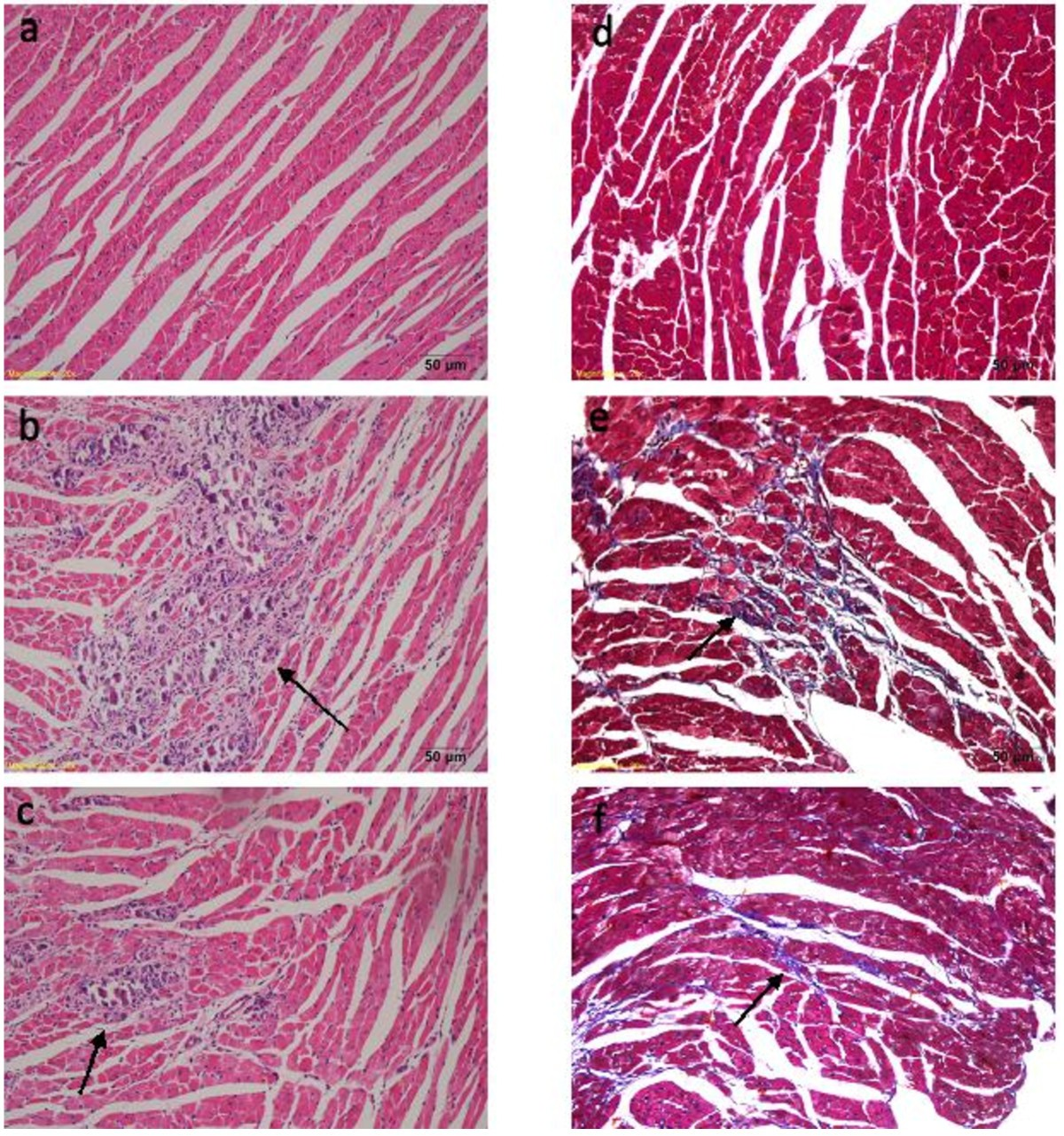 Effects Of Carvedilol Treatment On Cardiac Camp Response Element Binding Protein Expression And Phosphorylation In Acute Coxsackievirus B3 Induced Myocarditis Bmc Cardiovascular Disorders Full Text