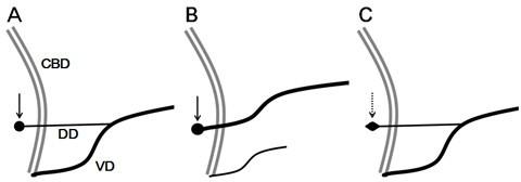 Santorinicele without pancreas divisum pathophysiology: initial ...