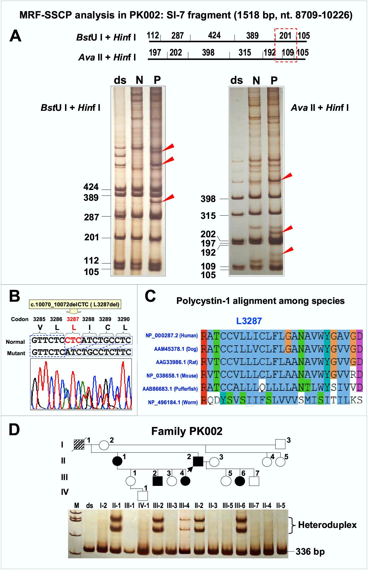 Novel and de novo PKD1 mutations identified by multiple restriction ...