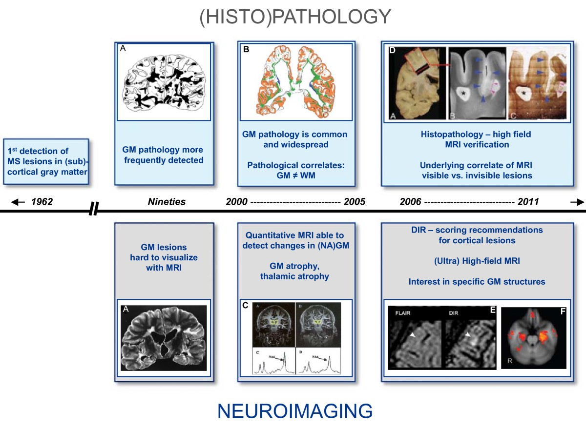 Gray matter imaging in multiple sclerosis: what have we learned ...
