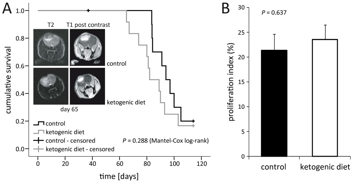 Differential utilization of ketone bodies by neurons and glioma cell lines: a rationale for ...
