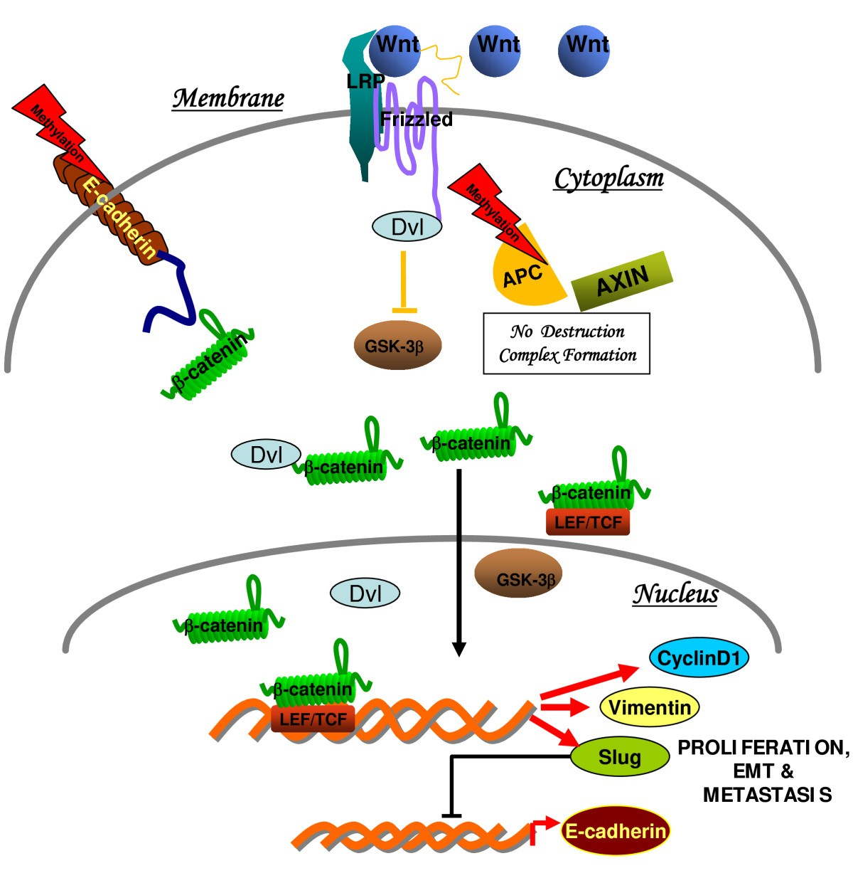 Expression analysis of E-cadherin, Slug and GSK3β in invasive ductal ...