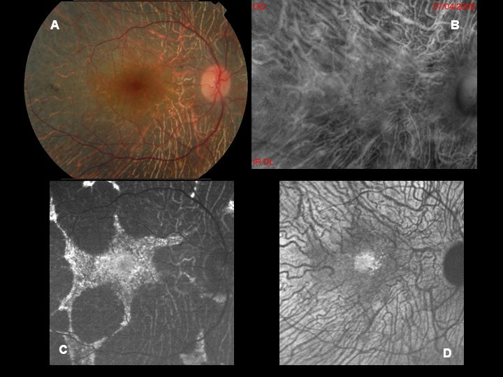 Retro Mode Imaging And Fundus Autofluorescence With Scanning Laser