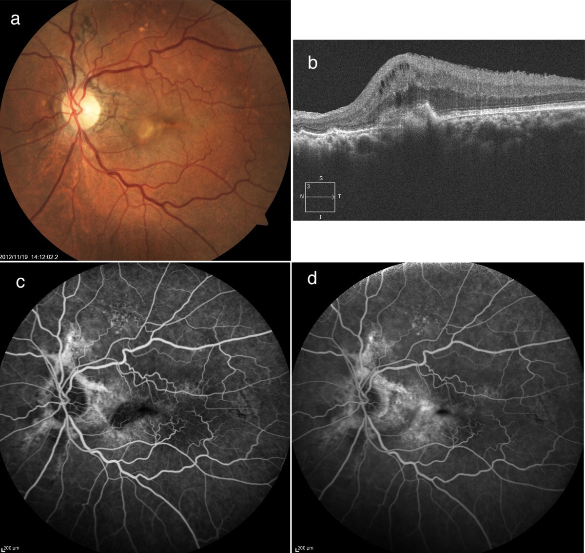 Choroidal Neovascularization In Angioid Streaks Following