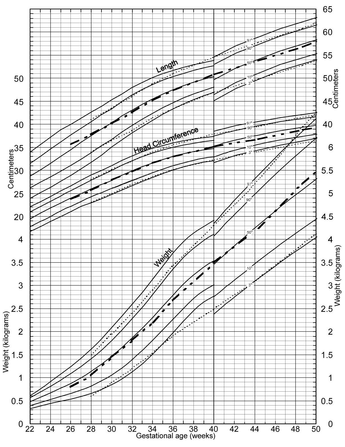 A New Growth Chart For Preterm Babies Babson And Bendas Chart
