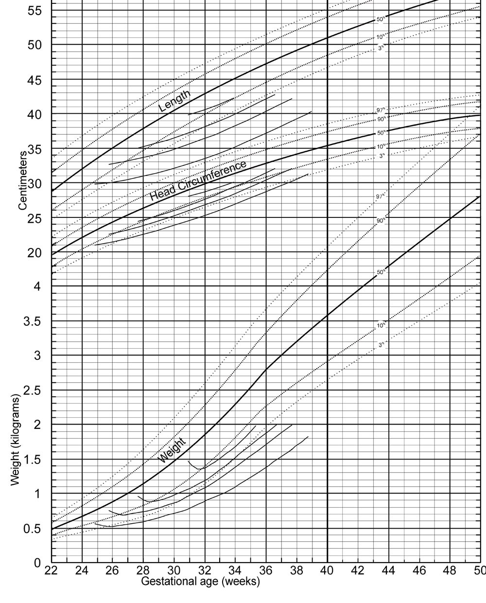 A new growth chart for preterm babies babson and benda s chart