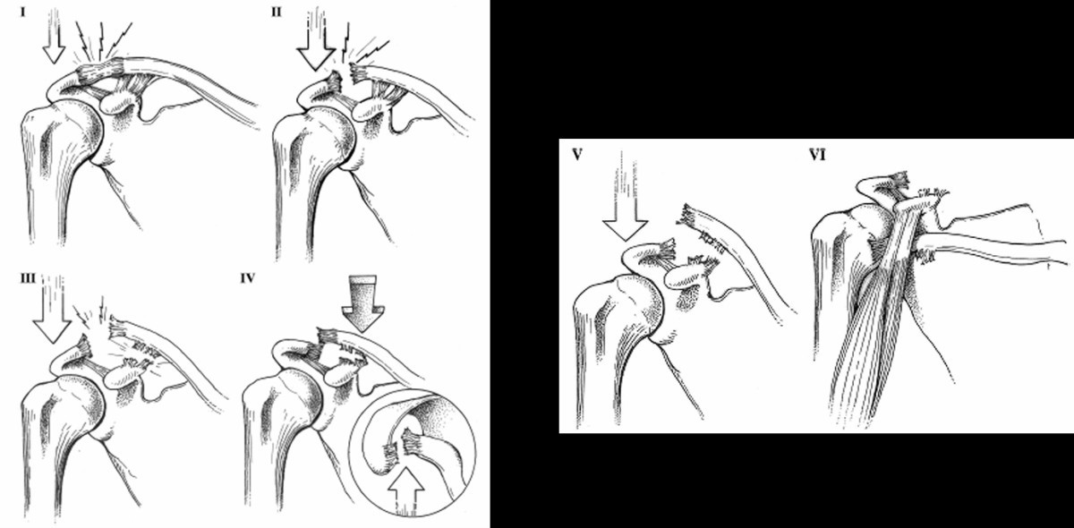 Acromioclavicular Joint Reconstruction With Coracoacromial Ligament