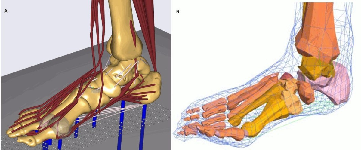 Generation Of Subject Specific Dynamic Multisegment Ankle And Foot