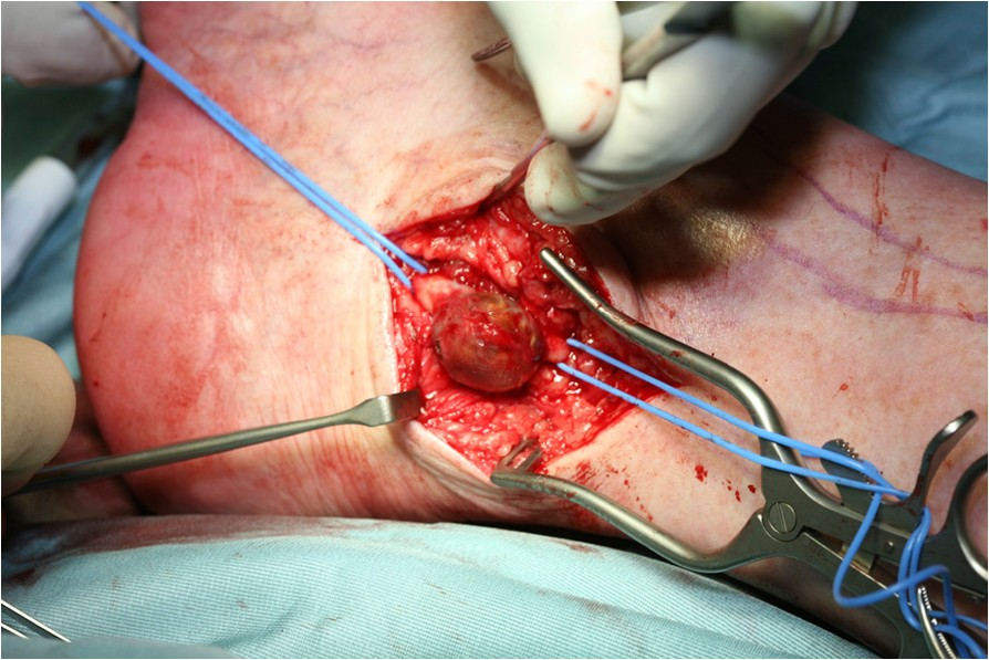 posterior tibial artery aneurysm a case report with
