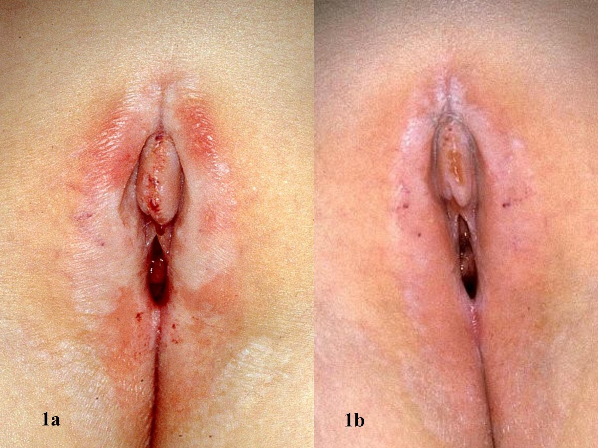 Everything You Need To Know About Vaginal Bleaching
