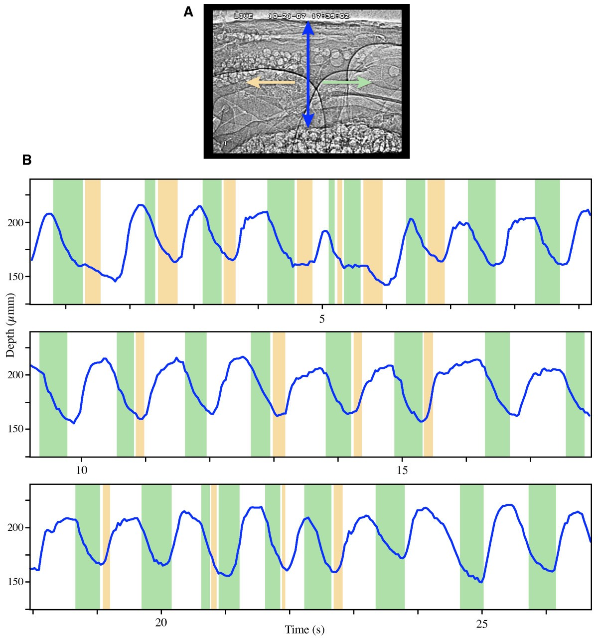 Direct Visualization Of Hemolymph Flow In The Heart A Grasshopper Measure External Voltage Electrical Engineering Stack Exchange Figure 2