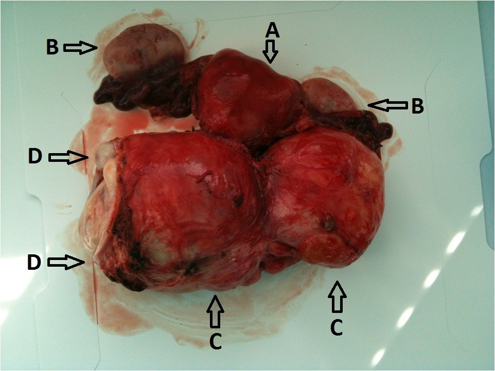 A Case Of A Large Solitary Fibrous Tumour Of The Uterine Cervix