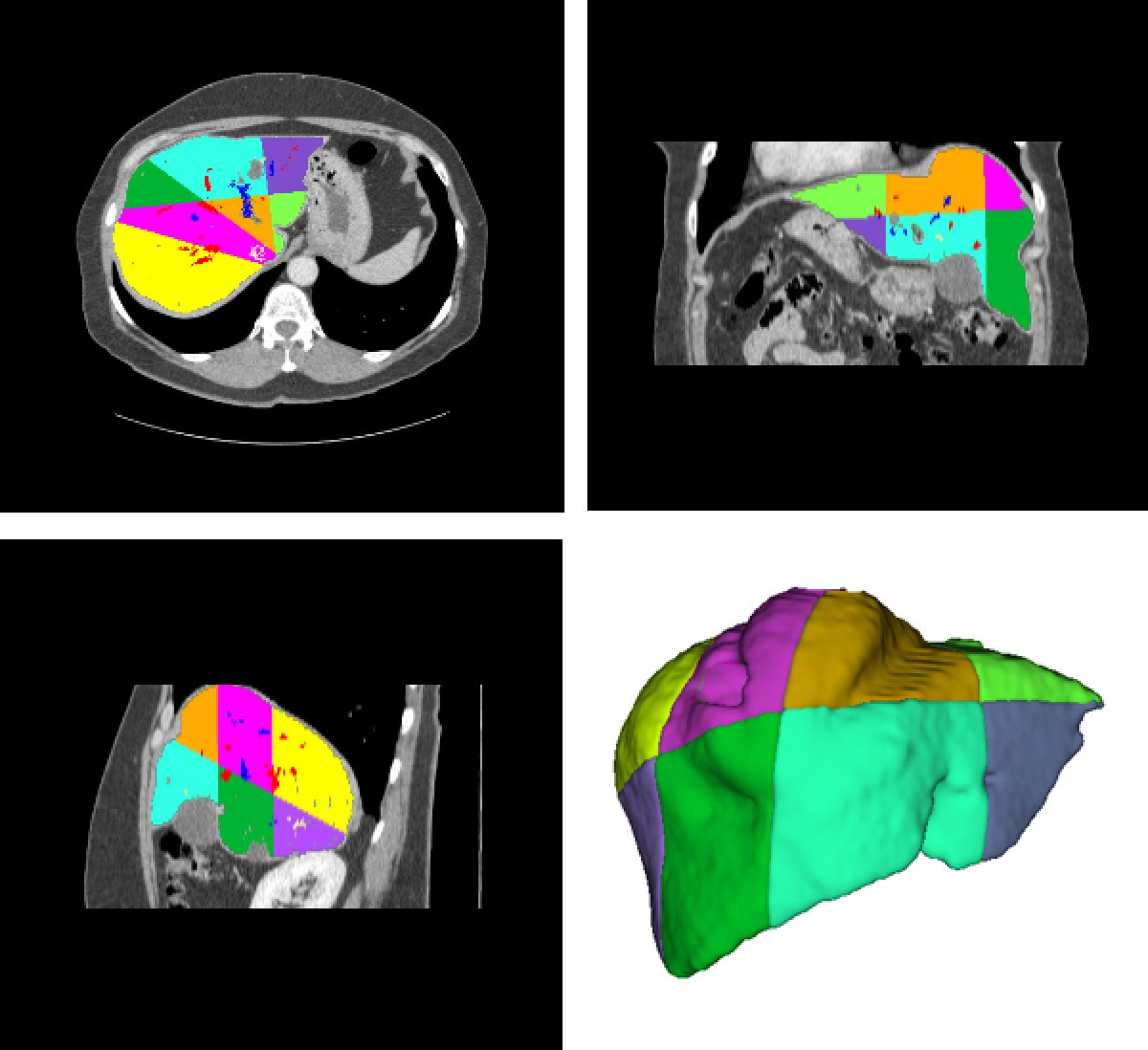 Segmentation Of Liver Its Vessels And Lesions From Ct Images For