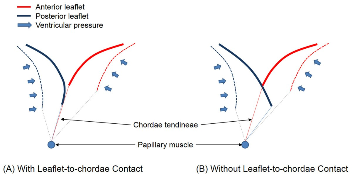 Effect Of Leaflet To Chordae Contact Interaction On Computational