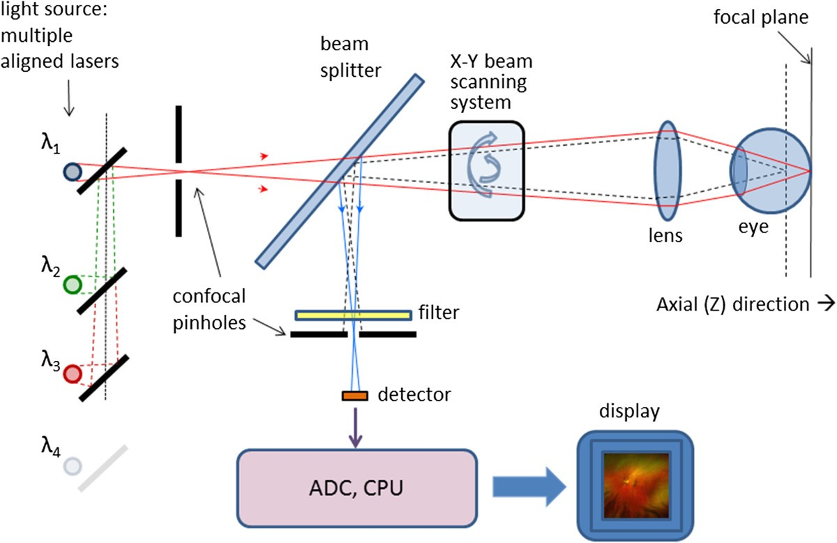 Modern Technologies For Retinal Scanning And Imaging An Transimpedance Amplifier Wikipedia Figure 4