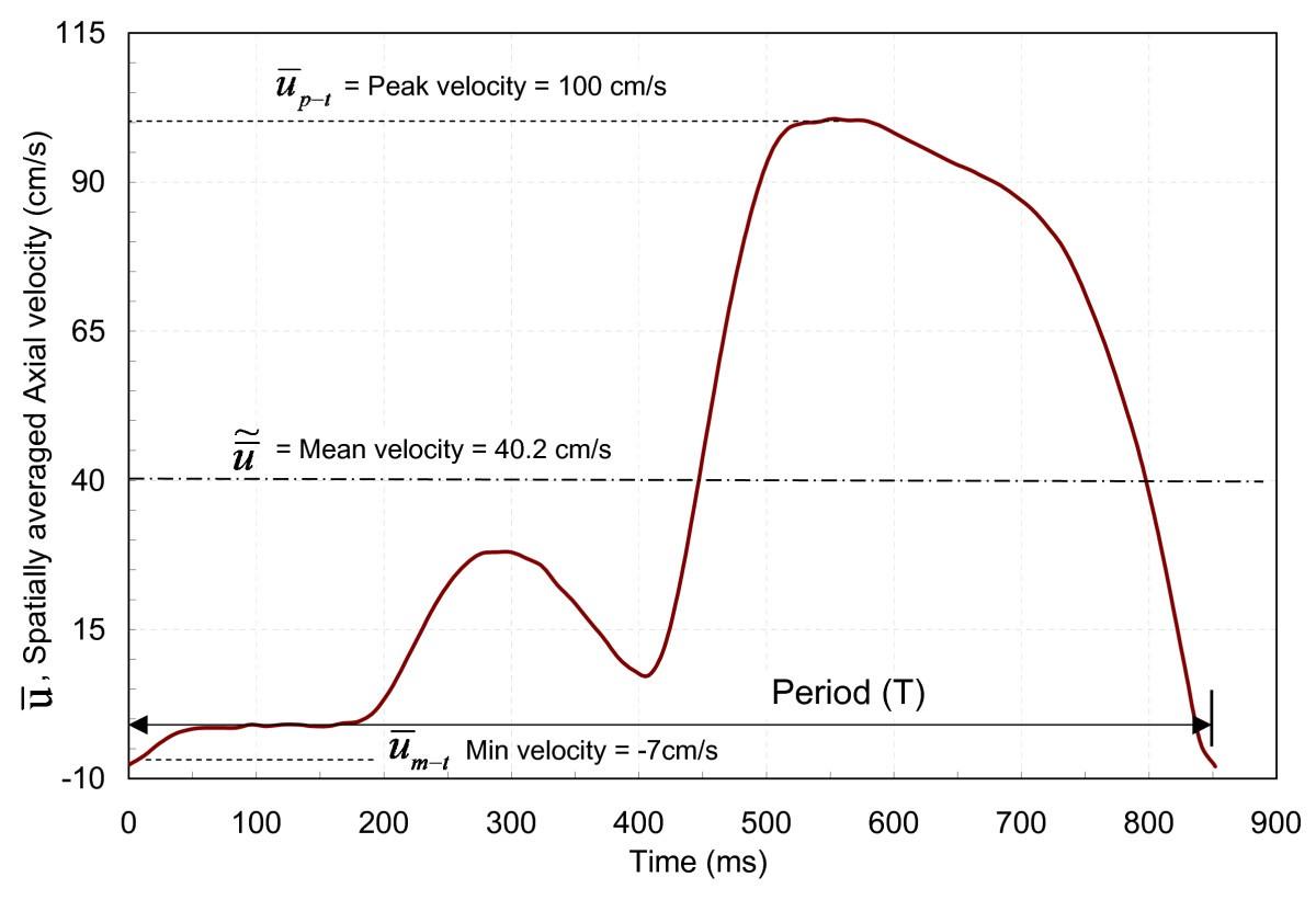 Hemodynamic Diagnostics Of Epicardial Coronary Stenoses In Vitro Diagram Wire Sensor Cdp 2 Snow Figure 3