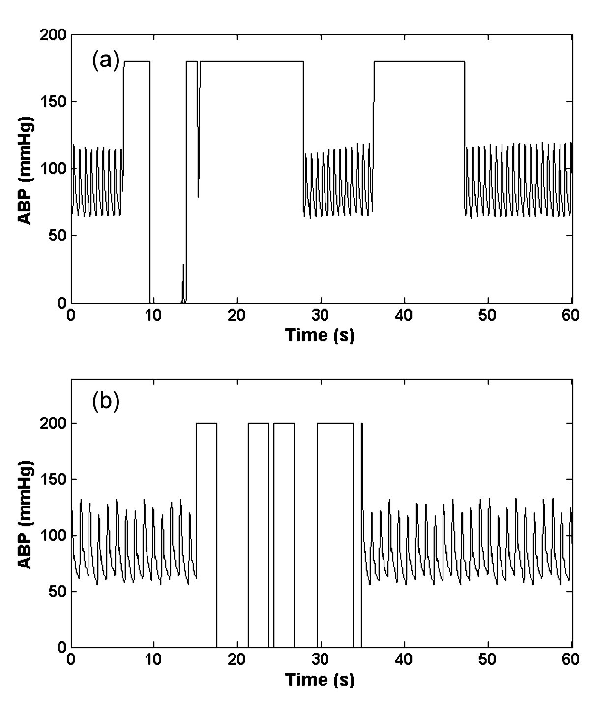 Artificial Arterial Blood Pressure Artifact Models And An Evaluation Categorybandreject Filter Circuits Wikimedia Commons Figure 4