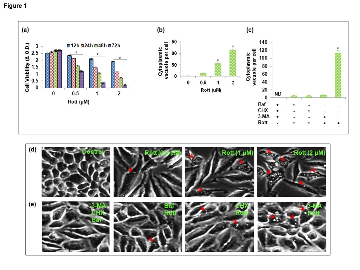 Rottlerin Induced Autophagy Leads To The Apoptosis In Breast Cancer 99 Electronic Toolbox 10 Combines Results