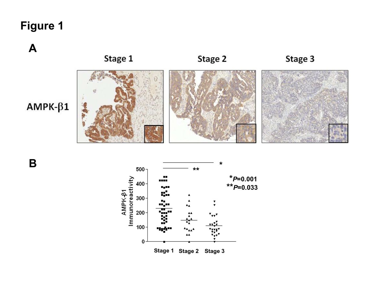 Reduced Expression Of Ampk B1 During Tumor Progression Enhances The Oncogenic Capacity Of Advanced Ovarian Cancer Molecular Cancer Full Text