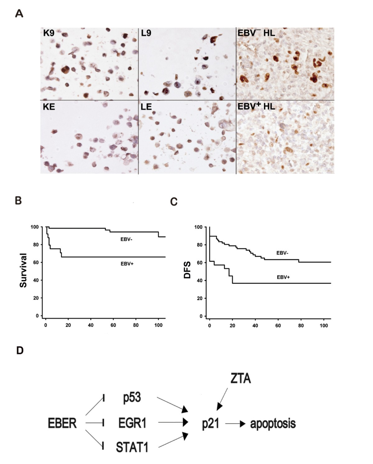 EBV-positive Hodgkin lymphoma is ociated with suppression of ... on