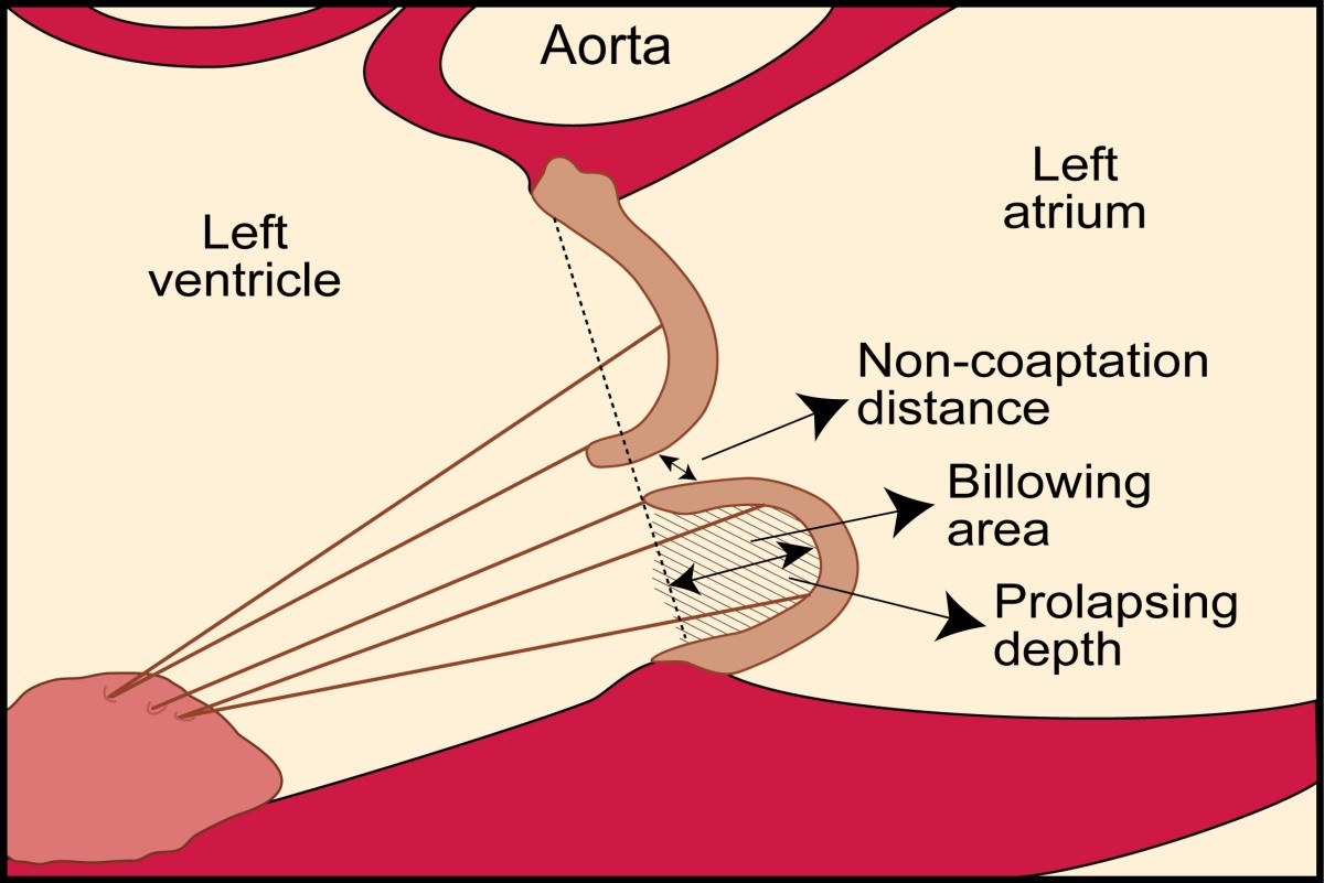relation of mitral valve morphology and motion to mitral