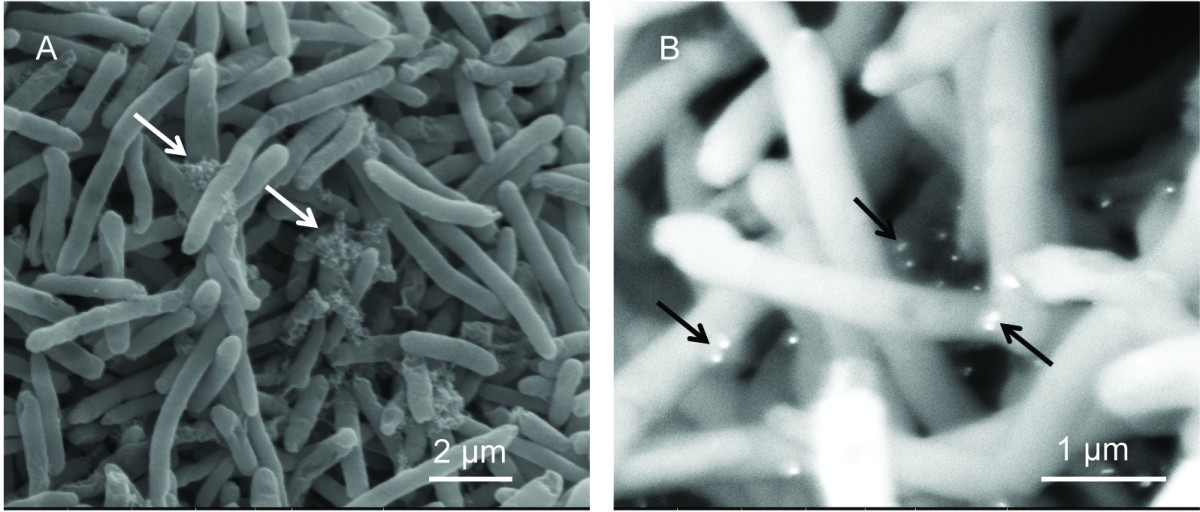 gold and silver nanoparticles against e coli The antibacterial activities of silver nanoparticles (ag-nps) were studied with respect to gram-positive staphylo- coccus aureus and gram-negative escherichia coli by observing the bacterial cells treated or not with ag-nps by.