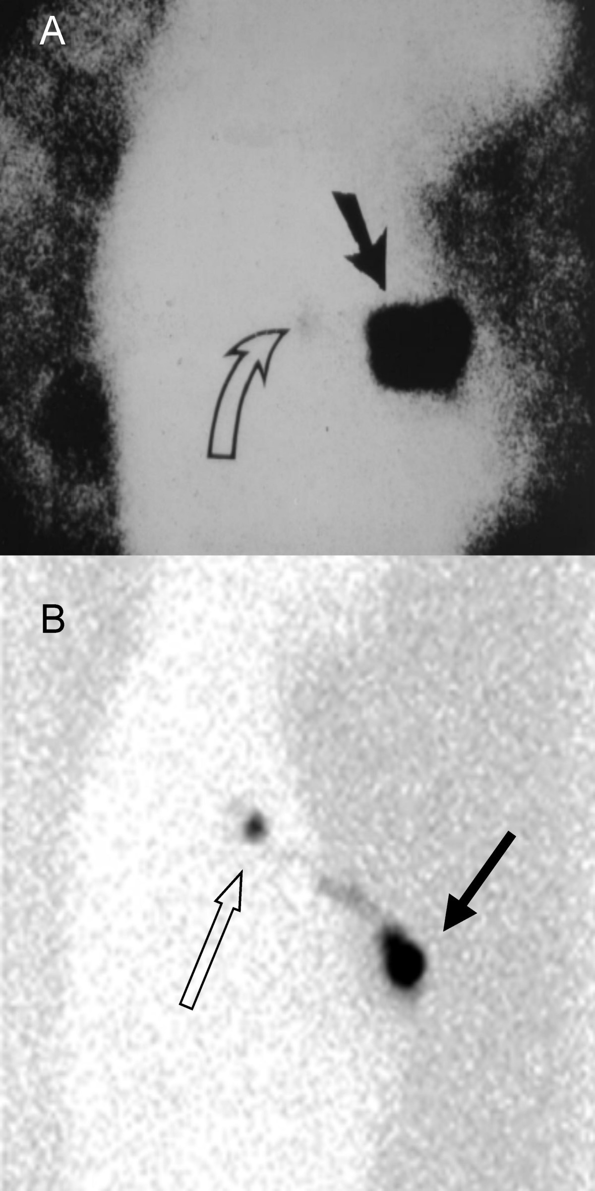 Lymphoscintigraphy And Triangulated Body Marking For Morbidity Sentinel 500 Wiring Diagram Figure 1