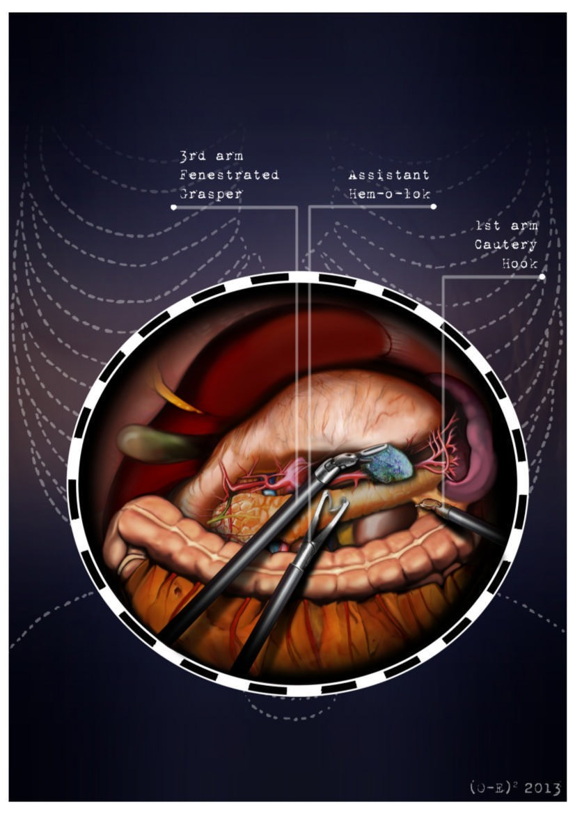 Robotic distal pancreatectomy with or without preservation of spleen ...