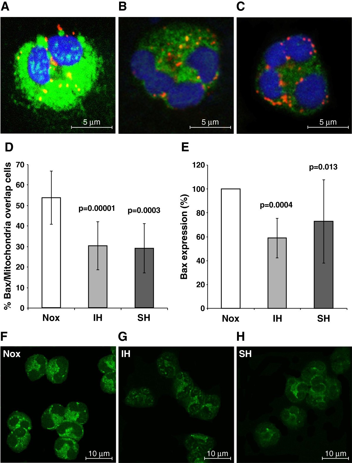 Bax/Mcl-1 balance affects neutrophil survival in intermittent