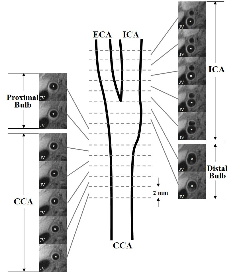 differences in carotid arterial morphology and composition